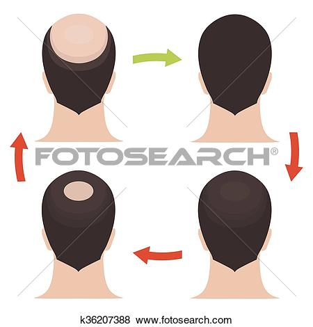 Clip Art of Male hair loss stages set k36207388.