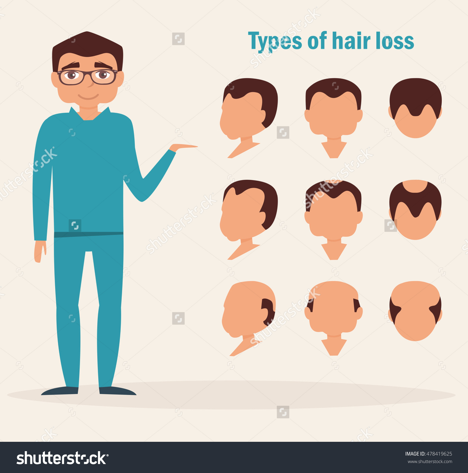 Types Of Hair Loss. Full Face, Profile, Top Types. Vector.