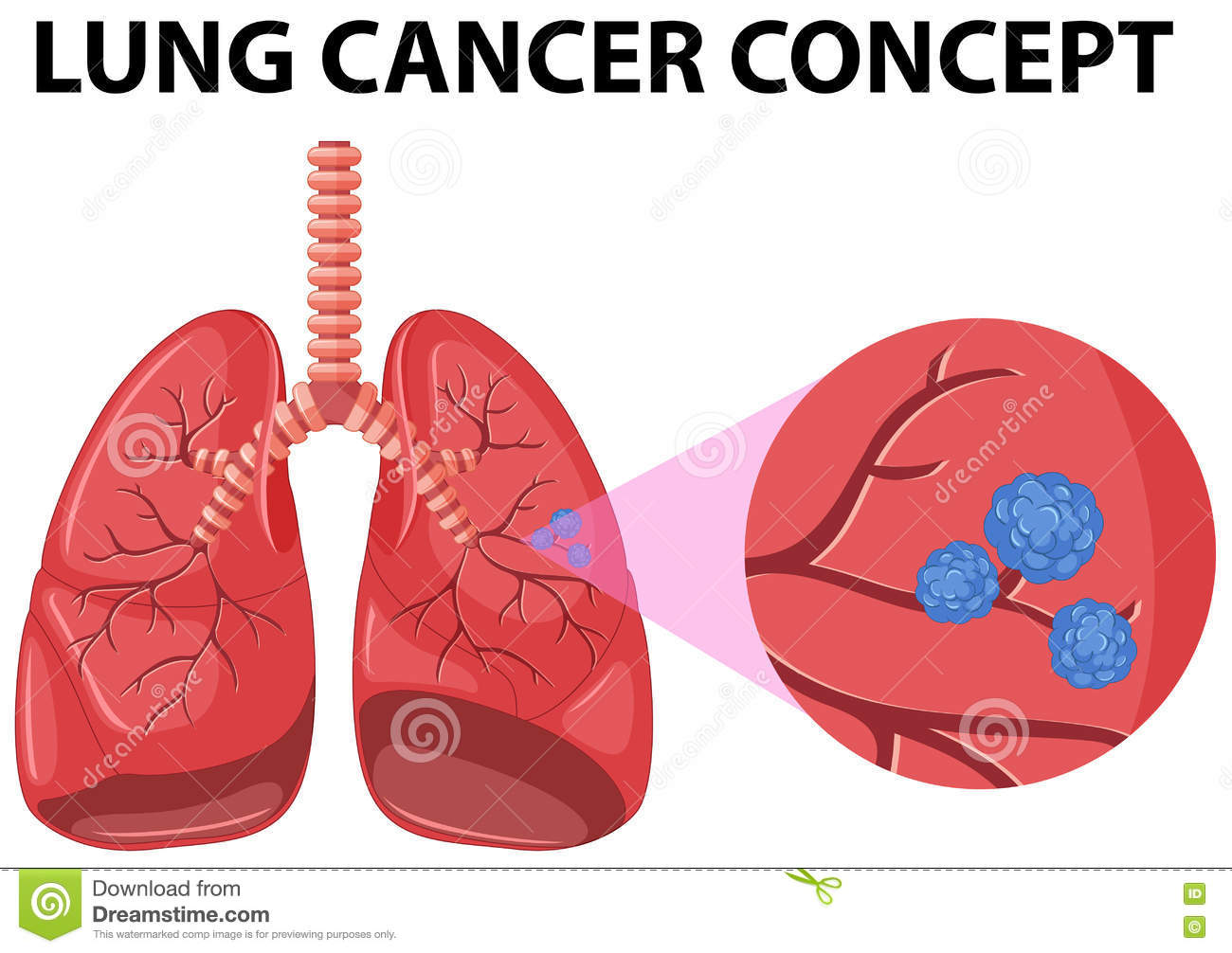Lung cancer clipart 2 » Clipart Station.