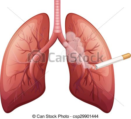 Lung cancer with smoke.