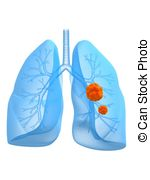 Lung cancer Clip Art and Stock Illustrations. 2,720 Lung cancer.