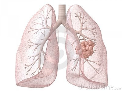 Lung Cancer Clipart Clipground