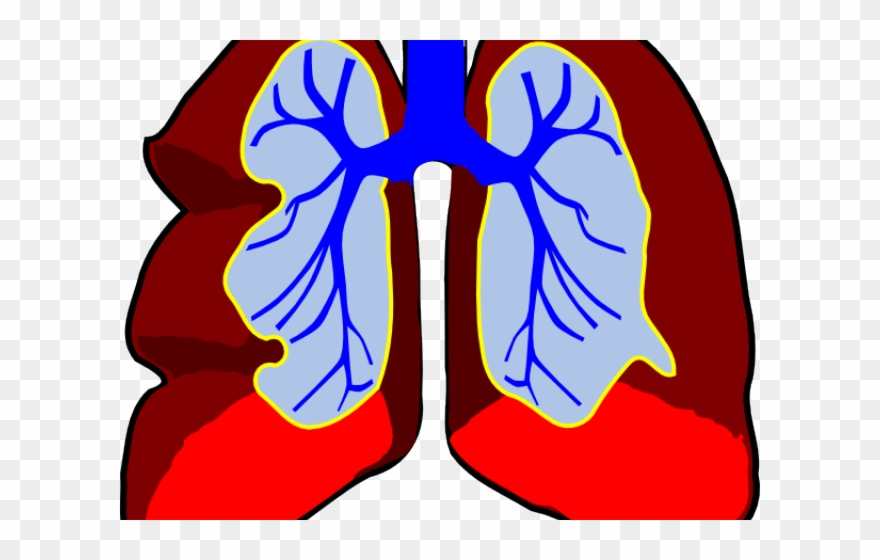 Sick Clipart Lung.