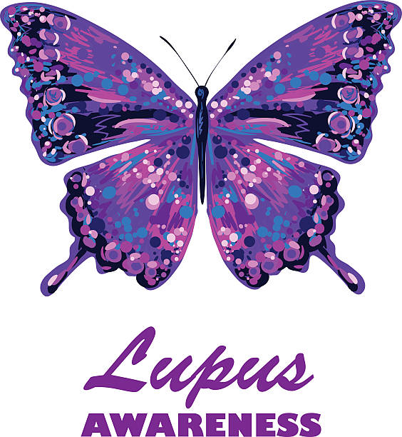 Best Lupus Disease Illustrations, Royalty.