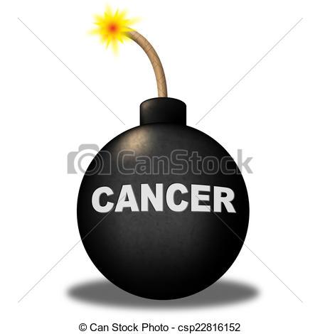 Malignant melanoma Clipart and Stock Illustrations. 89 Malignant.