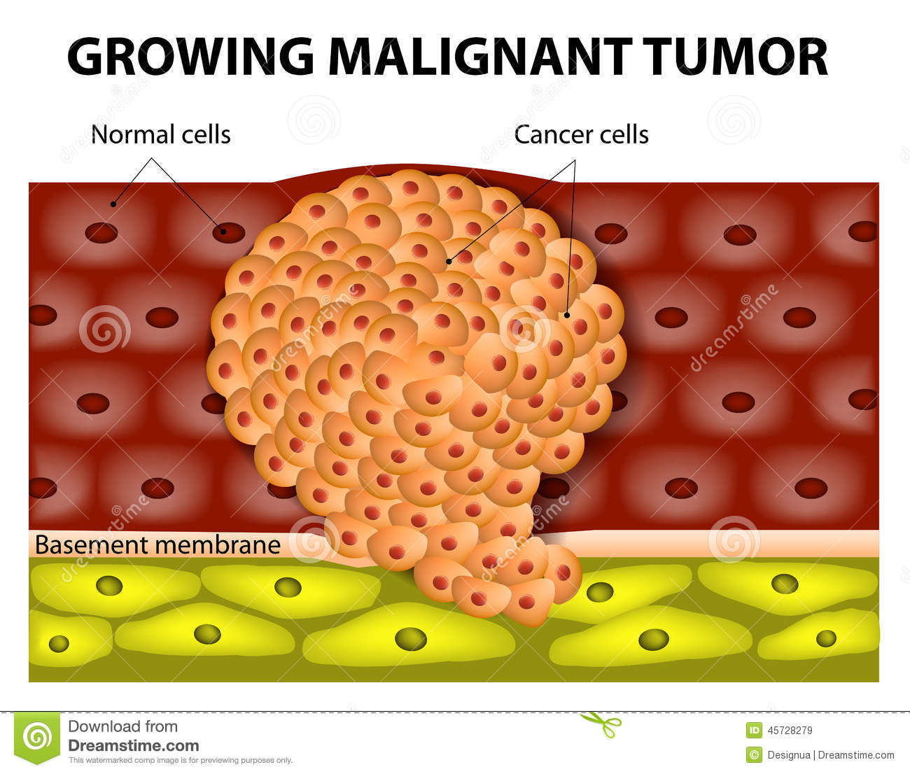 Growing Malignant Tumor Stock Vector.