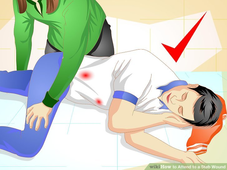 How to Attend to a Stab Wound (with Pictures).