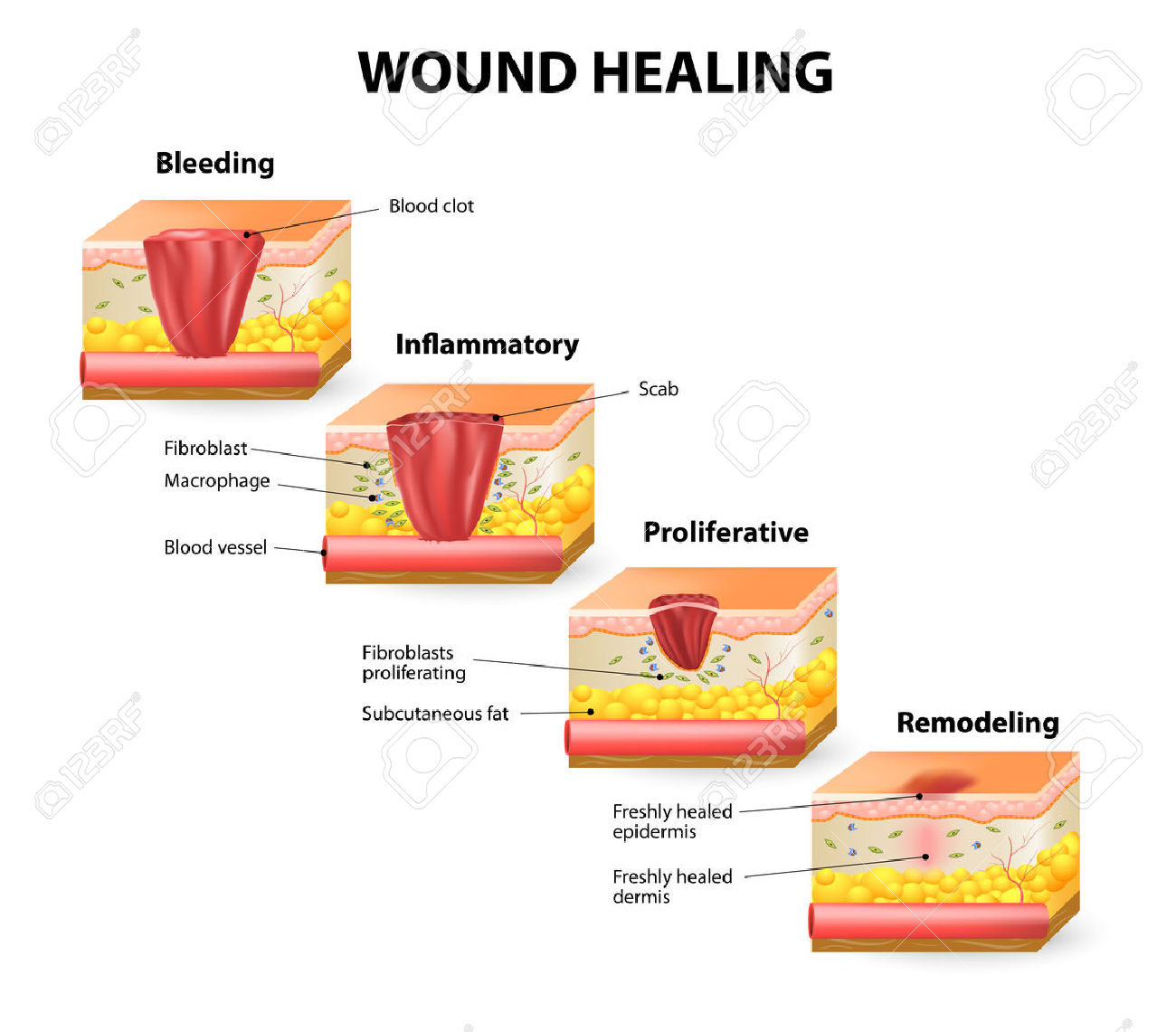Phases Of The Wound Healing Process. Hemostasis, Inflammatory.