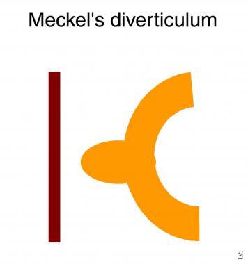 Meckel Diverticulum Imaging: Overview, Radiography, Computed.