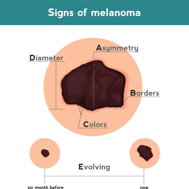 Best Melanoma Illustrations, Royalty.