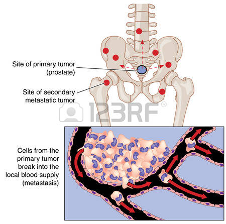 460 Metastasis Cliparts, Stock Vector And Royalty Free Metastasis.