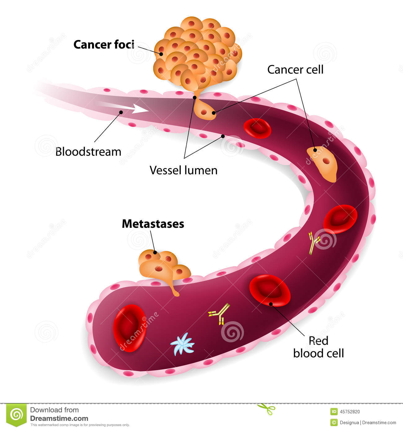 Prostate Cancer Metastasis Royalty Free Stock Image.