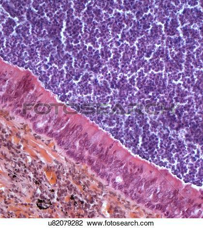 Clip Art of Acute bronchitis, light micrograph u82079282.