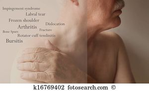 Bone spurs Stock Photo Images. 61 bone spurs royalty free pictures.