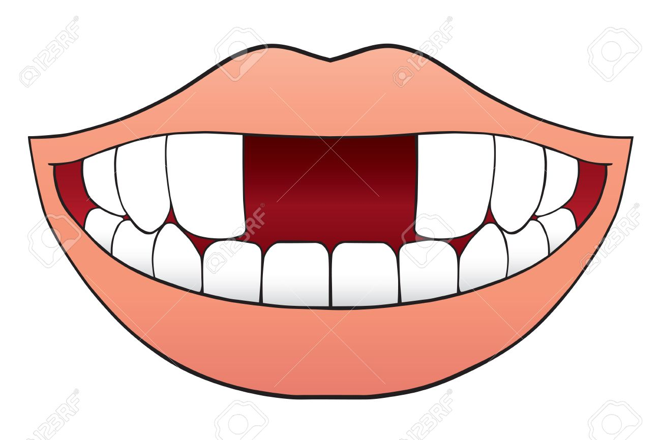 Smiling cartoon mouth is missing two front teeth.