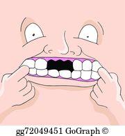 Missing Teeth Clip Art.
