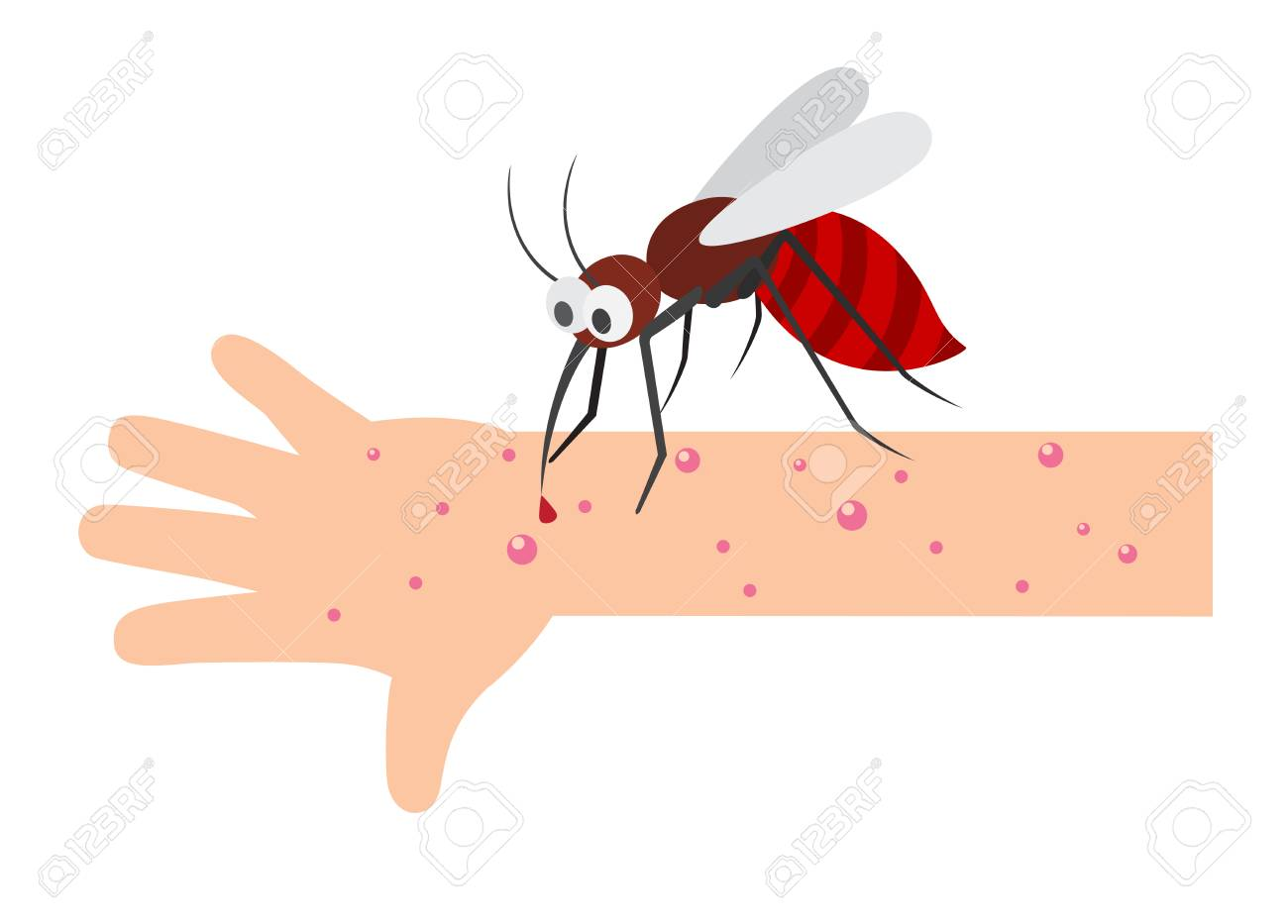 Mosquito bite.vector illustration..