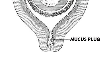 Mucus Plug.