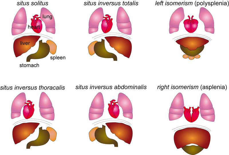 Study: laterality defects, including heart and vascular malformations.