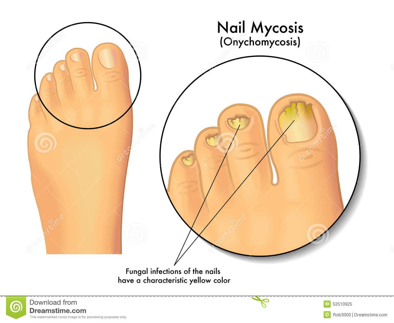 Nail Mycosis Stock Photo.