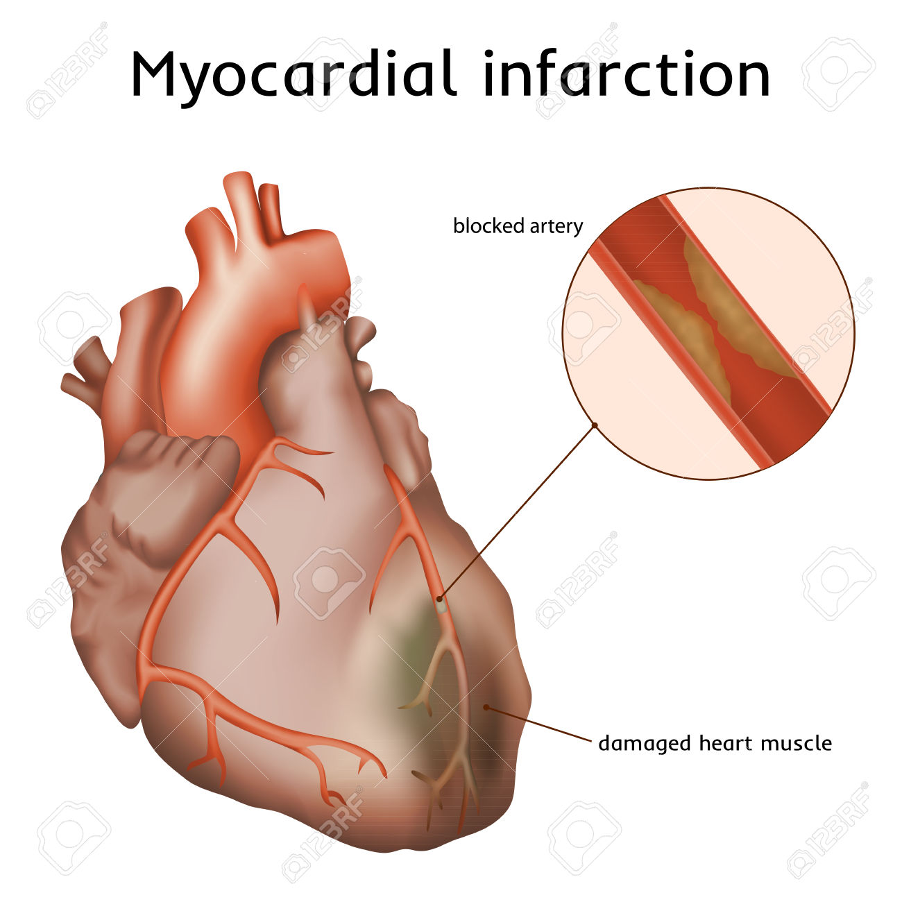 Myocardial Infarction. Heart Attack. Blocked Artery, Damaged.