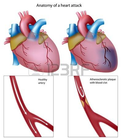 428 Myocardial Stock Vector Illustration And Royalty Free.