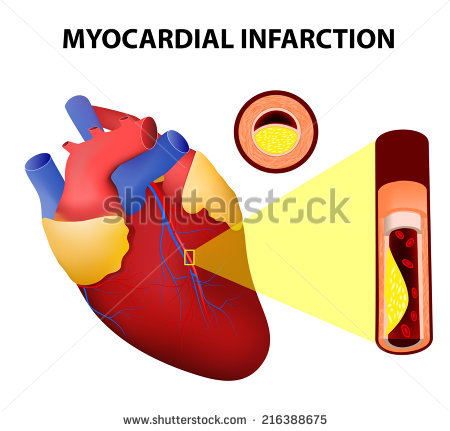 Myocardial Infarction Stock Images, Royalty.
