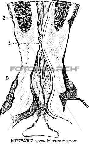 Clip Art of Narrowing of the membranous area of the urethra with.