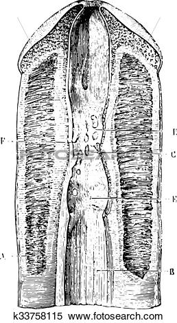 Clipart of Narrowing of the urethra several consecutive.