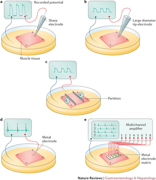 Problems with extracellular recording of electrical activity in.
