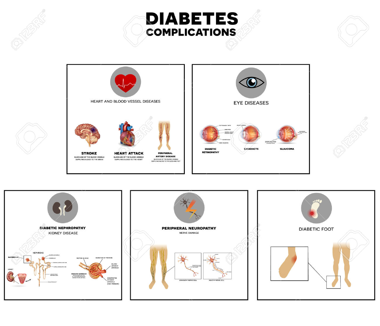 Diabetes Complications Affected Organs. Diabetes Affects Nerves.