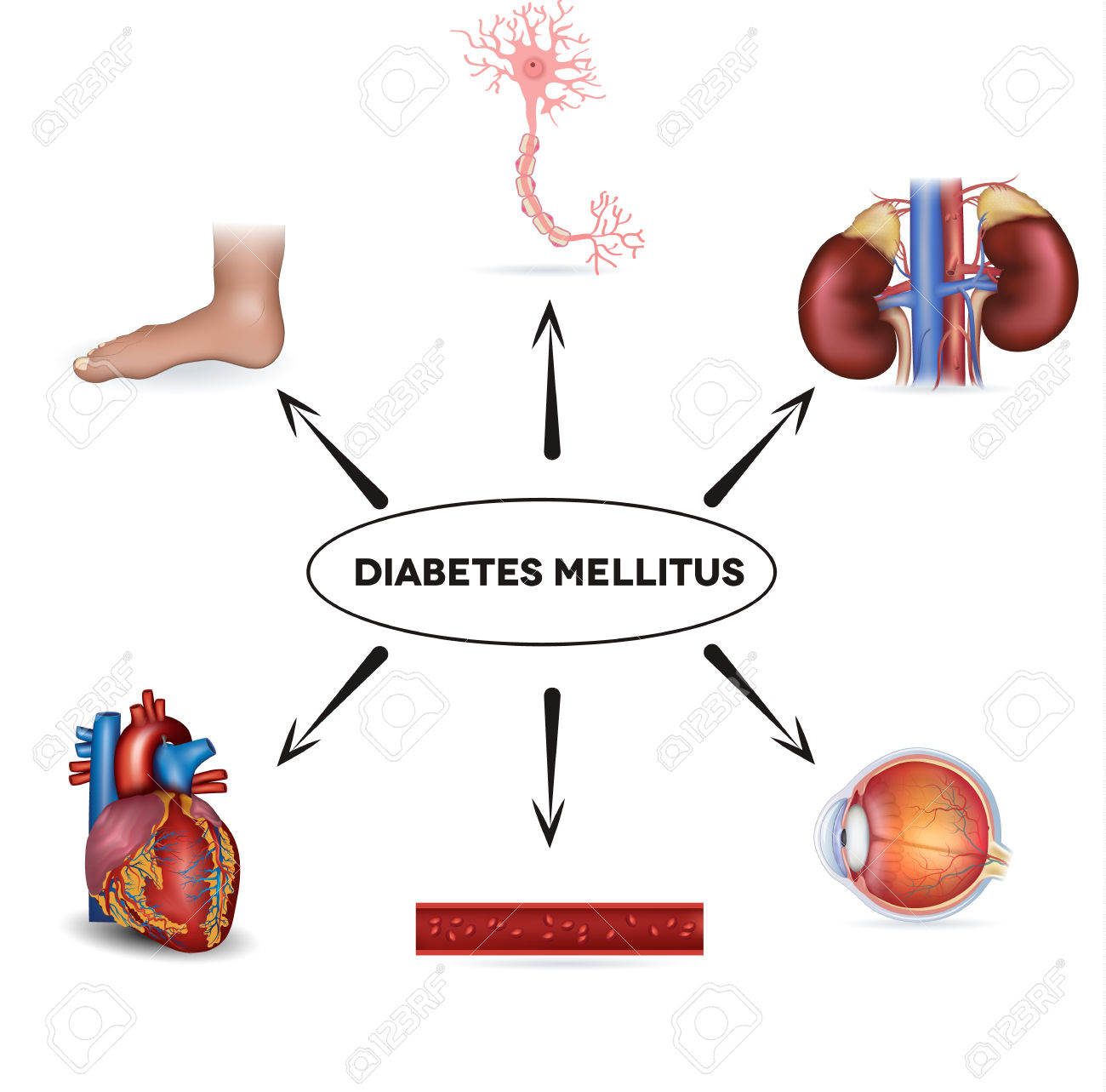 Diabetes Mellitus Affected Areas Diabetes Affects Nerves, Kidneys.