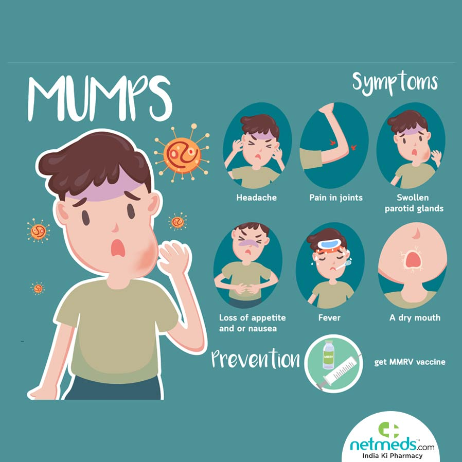 Mumps: Causes, Symptoms And Treatment.