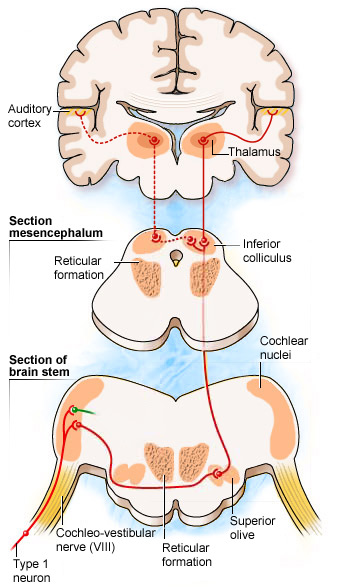 Auditory Brain.