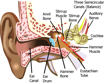 Noise Induced hearing loss in industry, protect your staff.