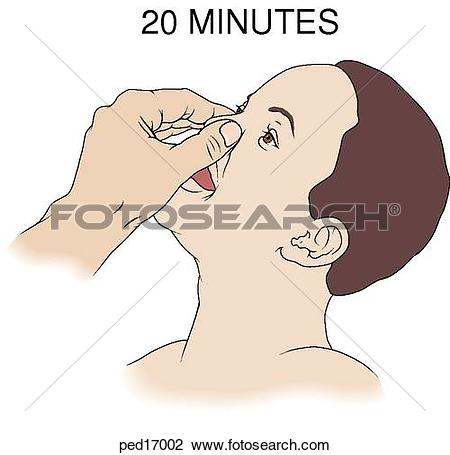 Nose bleed Illustrations and Stock Art. 21 nose bleed illustration.
