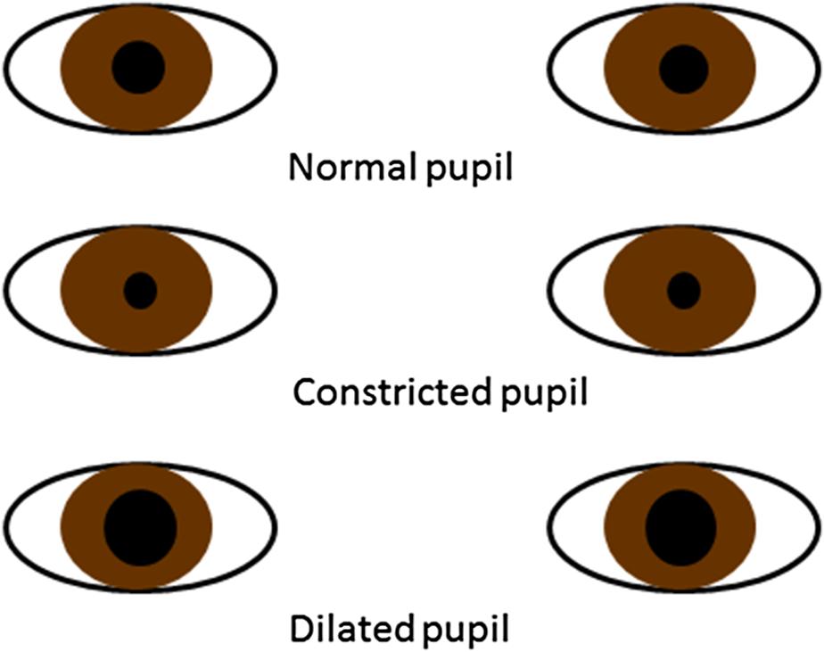 Discriminating between intentional and unintentional gaze fixation.
