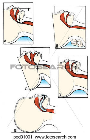 Clipart of (Top l.) Upper airway obstruction related to hypotonia.