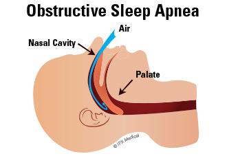Sleep Apnea Clip Art.