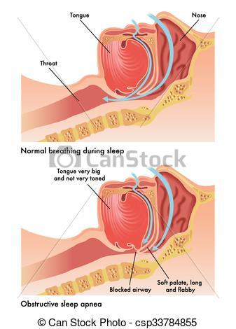 Obstructive sleep apnea Clipart and Stock Illustrations. 48.