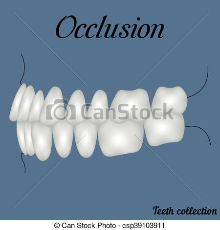 Vector Clip Art of occlusion side view.