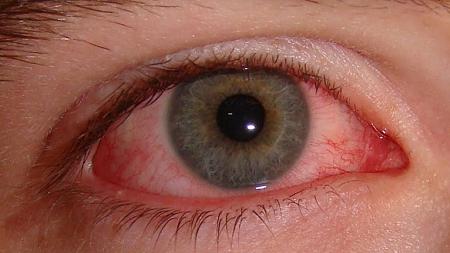 Síndrome do Olho Vermelho cresce 20% no Verão.