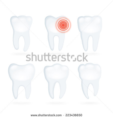 Vector Set Tooth Decay Process Stock Vector 71215192.