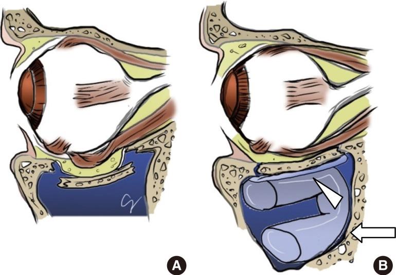 Transantral Orbital Floor Fracture Repair Using a Folded Silastic Tube.