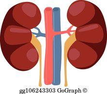 Kidney Transplant Clip Art.