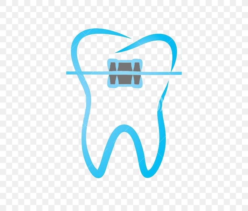 ORTHODONTICS: THE ART AND SCIENCE Clip Art Dental Braces.
