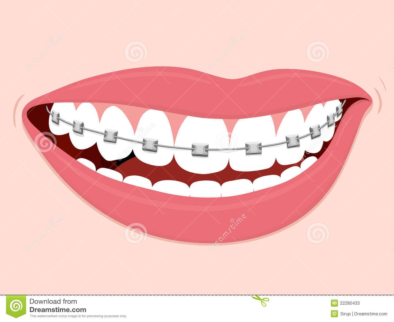 Orthodontic Stock Illustrations.