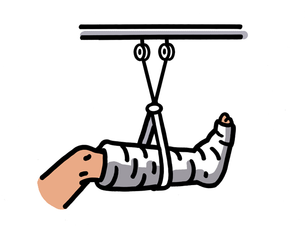Clipart broken leg orthopedic cast image.