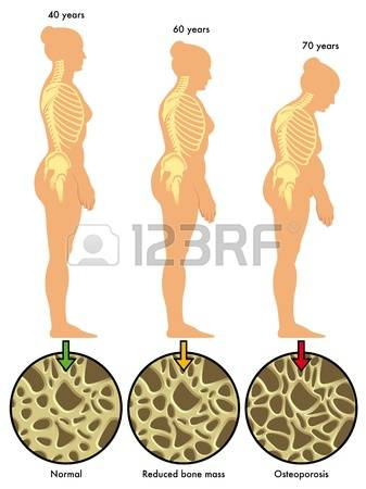 4,088 Osteoporosis Stock Vector Illustration And Royalty Free.