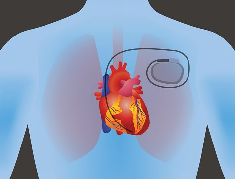 The Heart of Human and Artificial Cardiac Pacemaker premium.